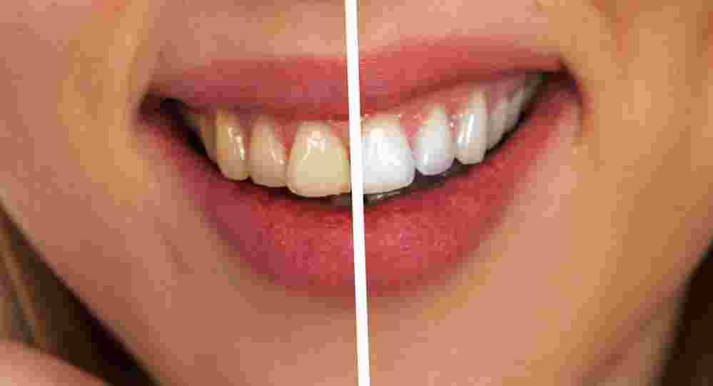 Cara memutihkan gigi dengan bahan alam
